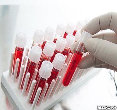 Биохимический анализ крови: Триглицериды от компании ...